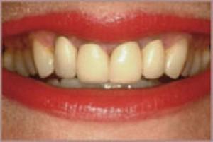 smiledesign-b-2uvbo65pxw5i5cqectmkui