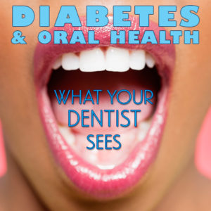 dental-and-diabetes