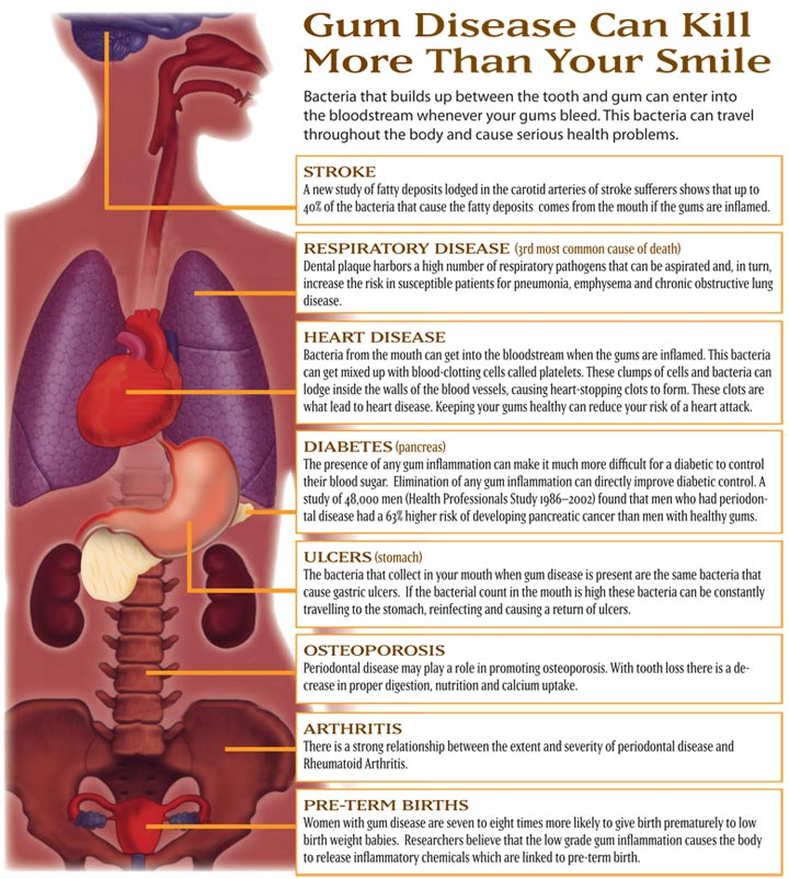 Hypertension And Oral Health | Hastings Family Dental