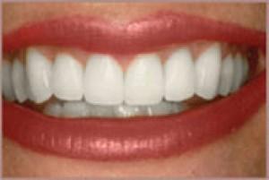 smiledesign-a-2uvbo6sc5ctg1lgra5juve