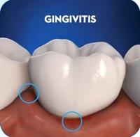 gingivitis-image-1