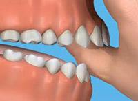 Thumb-Sucking-Dental-care